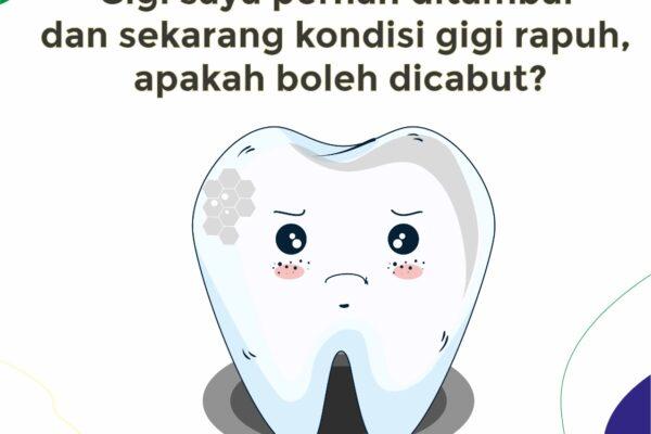 Gigi Saya Pernah Ditambal Dan Sekarang Kondisi Gigi Rapuh, Apakah Boleh Dicabut?